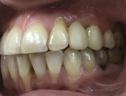 ортопедия  пример 2  доктор Бычков А А, техник Шкирко И. М.
