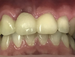 восстановление передних зубов. Д-р Бычков А.А, техник Шкирко И.М.